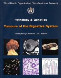 Stanley-R Hamilton et Lauri-A Aaltonen - Pathology and genitics of tumours of the digestive system.