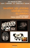Stéphane Louryan et Marc Lemort - Imagerie des lésions dégénératives du cerveau.