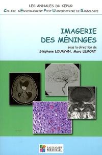 Stéphane Louryan et Marc Lemort - Imagerie des méninges.