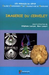 Stéphane Louryan et Marc Lemort - Imagerie du cervelet.