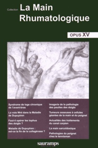 Thomas Bardin - La main rhumatologique - Tome 15.