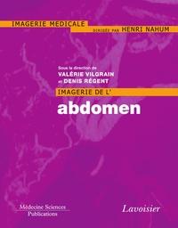 Valérie Vilgrain et Denis Régent - Imagerie de l'abdomen.