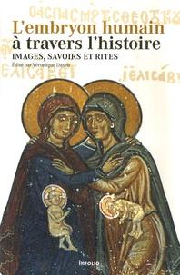 Véronique Dasen - L'embryon humain à travers l'histoire - Images, savoirs et rites.