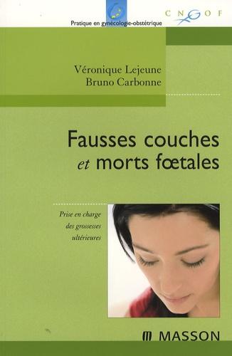 Véronique Lejeune et Bruno Carbonne - Fausses couches et morts foetales - Prise en charge immédiate et à long terme.