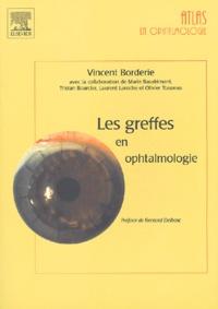 Vincent Borderie - Les greffes en ophtalmologie.