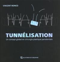 Vincent Ronco - Tunnélisation - Un concept global en chirurgie plastique parodontale.