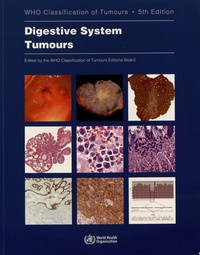 WHO Classification of Tumours - Digestive System Tumours.