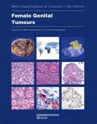 Who Classification of Tumours - Female Genital Tumours.