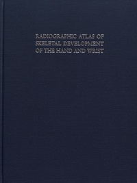 William Walter Greulich et S Idell Pyle - Radiographic Atlas of Skeletal Development of the Hand and Wrist.