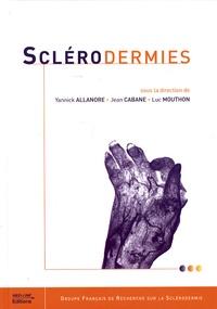 Yannick Allanore et Jean Cabane - Sclérodermies.