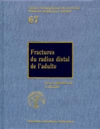 Yves Allieu et  Collectif - Fractures du radius distal de l'adulte.